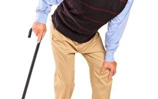 Замена сустава тазобедренного. как проходит, реабилитация после операции у пожилых, молодых, положена ли инвалидность, отзывы