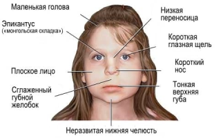Фетальный алкогольный синдром: причины и основные симптомы, мнение врачей