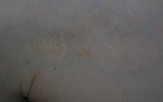 Сухие пятна на коже. что это, фото у взрослого, ребенка. красные, белые, темные, розовые круглые пятна чешутся и шелушатся. лечение кожи