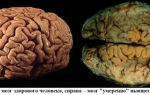 Алкогольное слабоумие (деменция): влияние спиртных напитков на мозг человека