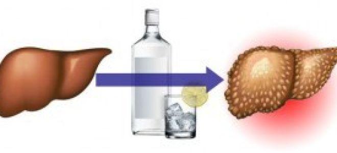 Алкоголь — это опасный яд, последствие употребление алкоголя на организм человека, советы врачей