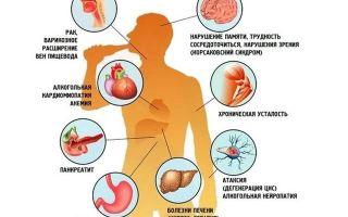 Алкоголь расширяет или сужает сосуды — влияние спирта на человека, мнение врачей