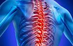 Межреберная невралгия. симптомы слева в области сердца под ребрами, справа со спины, сбоку. лечение заболевания в домашних условиях