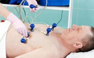 Алкогольная кардиомиопатия: возможные причины, основные симптомы и эффективные методы лечения
