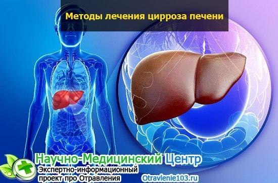 Алкогольный цирроз печени: сколько с ним живут, этапы и профилактика заболевания