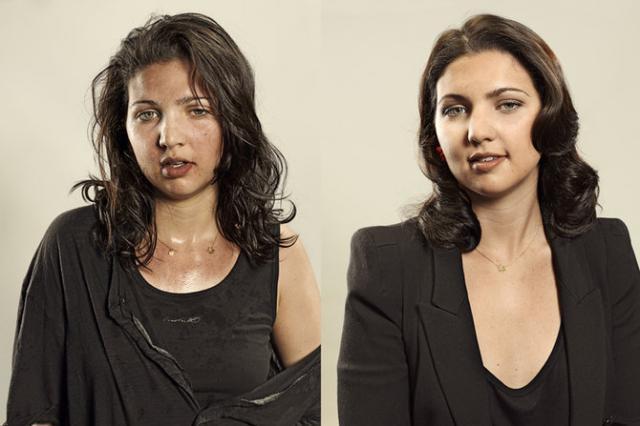 Лицо алкоголика: признаки и причины изменений во внешности, влияние алкоголя на организм человека