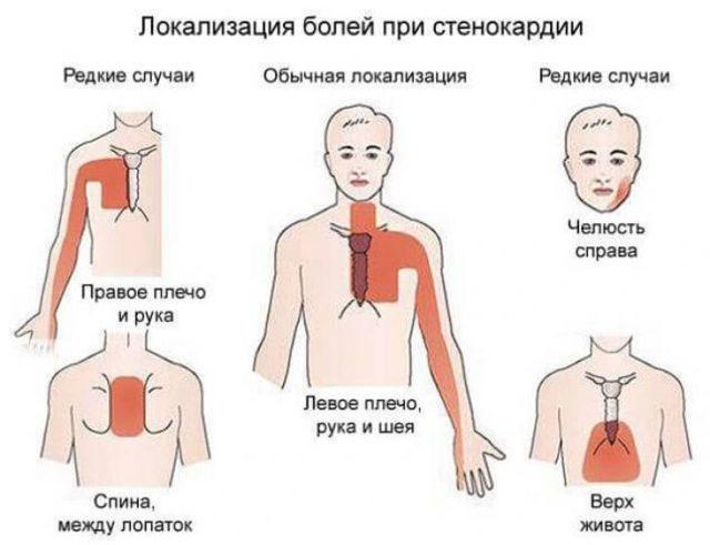 Болит сердце после алкоголя — Причины и методы лечения, полезные препараты при болях в сердце, советы кардиолога