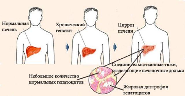 Алкогольный гепатит: симптомы болезни печени, методы лечения, отзывы врачей