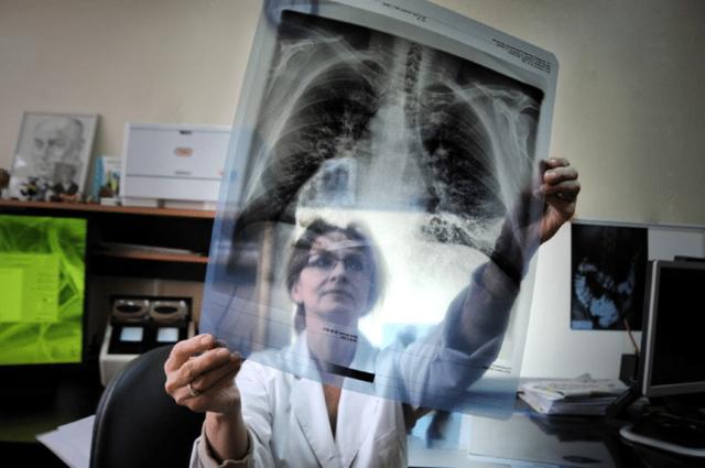 Можно ли курить перед флюорографией? Особенности исследования