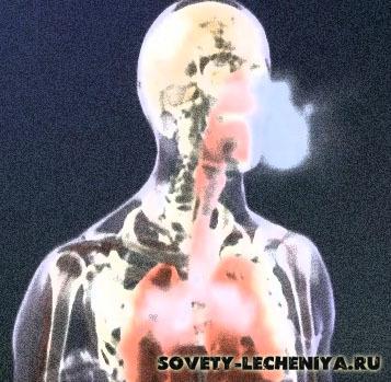 Курение убивает: статистика и основные последствия от вредной привычки