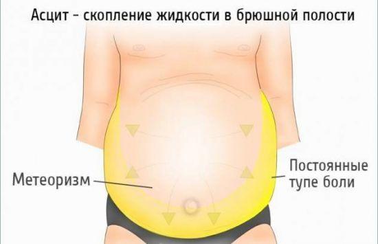 Признаки цирроза печени у мужчин от алкоголя — Симптомы и методы лечения цирроза на ранних сроках, препараты