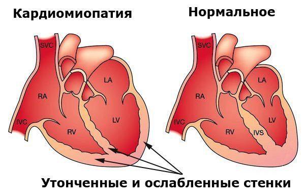 Влияние алкоголя на кровеносную систему — Последствия употребления алкоголя сердечно-сосудистая систему