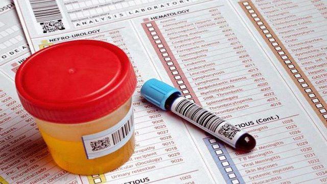 Анализы на наркотики: основные виды, стоимость и советы специалистов