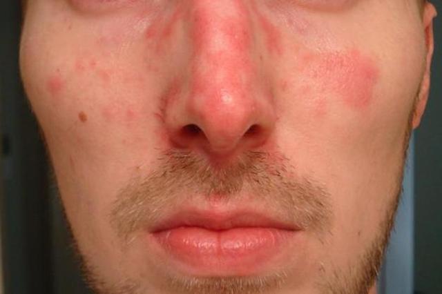 Красные пятна на лице после алкоголя — Причины и методы лечения, диагностика, советы врачей