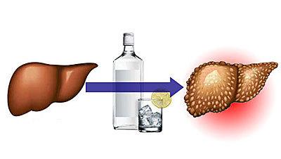 Употребление алкоголя: последствия длительного распития спиртного и возникновение алкоголизма