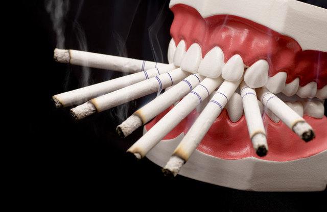 Можно ли курить после удаления зуба? Рекомендации стомалогов и возможные последствия
