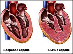Пивное сердце: диагностика и методы лечения, влияние алкоголя на сердечно сосудистую систему