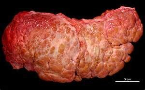 Болит в правом боку после алкоголя — Воспалились органы пищеварения