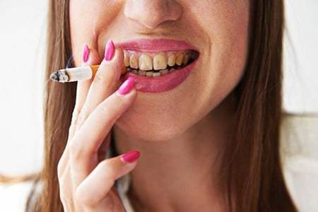 Зубы курильщика: Влияние курения и методы восстановления