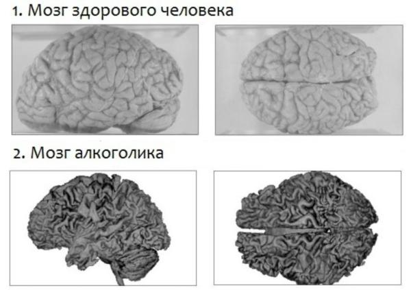 Алкоголь убивает клетки головного мозга: влияние спиртных напитков на организм человека, отзывы врачей