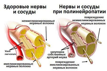 Алкоголь расширяет или сужает сосуды — Влияние алкоголя на сосуды человека, мнение врачей