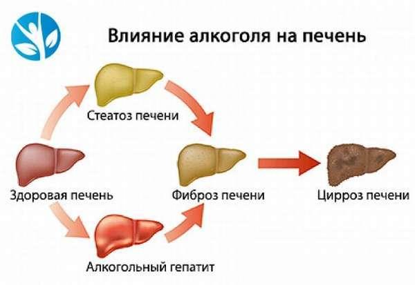 Диета при алкогольный цирроз печени