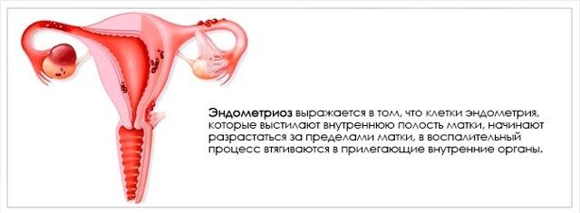 Эндометриоз. Симптомы и лечение у женщин народными средствами, травами, гормональными препаратами, гомеопатией, без гормонов. Таблетки, свечи после 30, 35, 40, 50, 60 лет, при климаксе, беременности, менопаузе в домашних условиях. Признаки, причины, прогноз