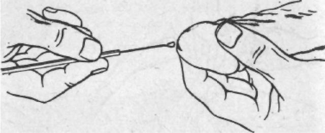 Микроскопическое исследование мазка. Расшифровка Инвитро, флора, лейкоциты. Норма и отклонения у женщин