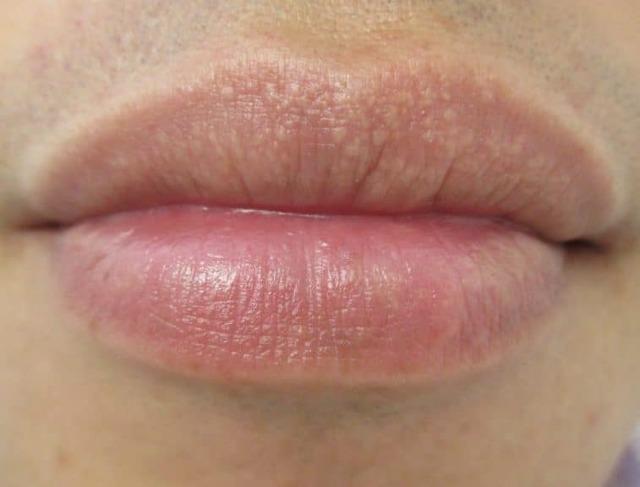 Белые точки на губах, мелкие прыщики, пупырышки. Что это, причины высыпания, лечение, гранулы Фордайса