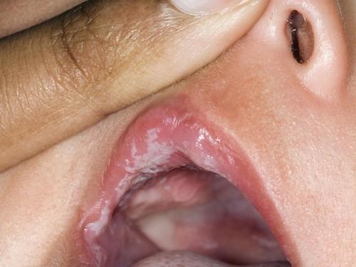 Стоматит у новорожденного ребенка во рту на десне, языке, губе, нёбе. Фото, лечение
