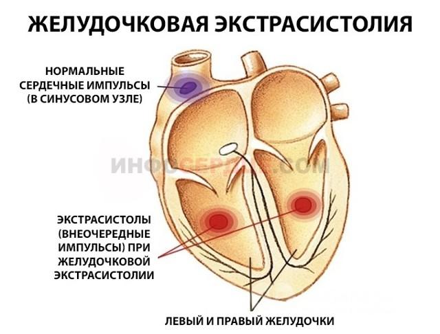 Желудочковая экстрасистолия. Что это такое, лечение, чем опасна, причины, последствия, ЭКГ, группы препаратов
