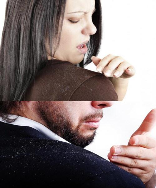 Корка на голове у взрослого. Как лечить перхоть под волосами, сухая кожа, как избавиться, если чешется