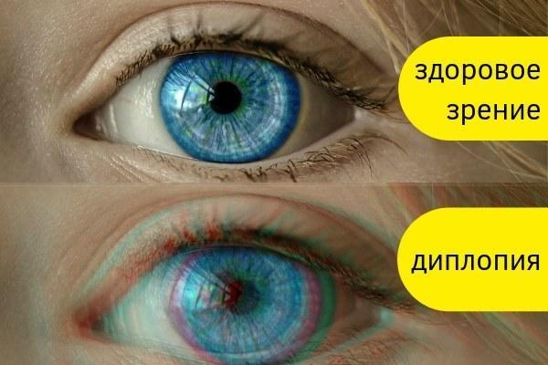 Диплопия. Причины развития, симптомы и лечение глаз, признаки заболеваний и состояний