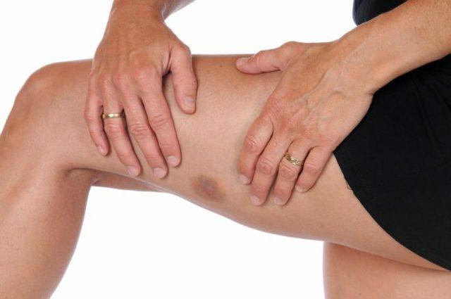 Мазь для рассасывания гематом, синяков, шишек после удара, от уколов, после операции на лице, ногах, теле