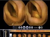 Эндоскопия желудка видеокапсульная. Что это, подготовка кишечника, алгоритм проведения детям и взрослым. Цена процедуры, где проводят