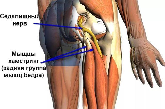Синдром грушевидной мышцы. Симптомы и лечение, гимнастика в домашних условиях