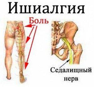 болит мышца ноги ниже колена сзади блин