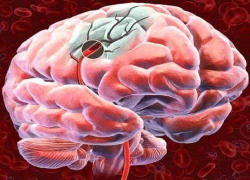 Вестибулопатический (вестибуло-атактический) синдром. Что это такое, как лечить выраженный, лёгкий