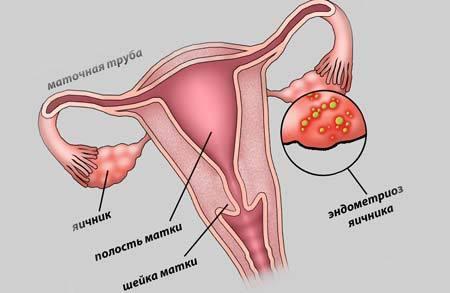 Боровая матка. Лечебные свойства и противопоказания для женщин в гинекологии. Отзывы, инструкция по применению настойки