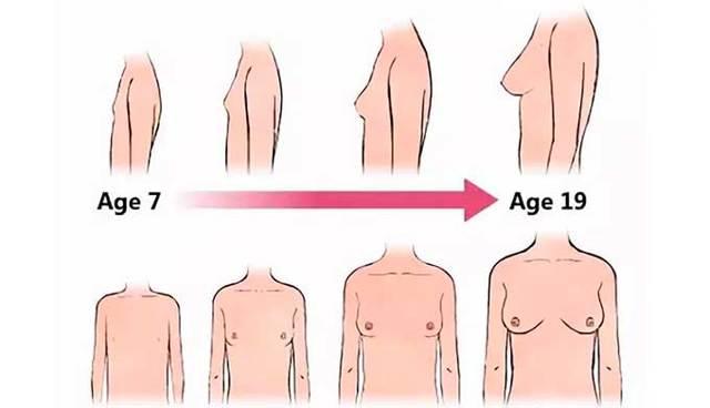 Болит сосочек левый/правый у женщин, девушек-подростков. Почему при нажатии, прикосновении, что это может быть, что делать
