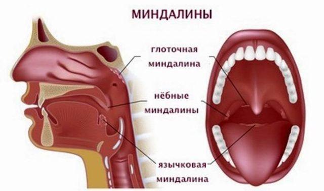 Миндалины в горле воспаление, фото, симптомы, лечение у детей, взрослых с одной стороны, язычной, чем полоскать