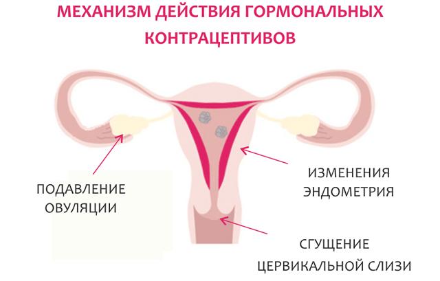 Коричневые выделения перед месячными. Что это значит у подростка, женщин, возможна ли беременность, что делать