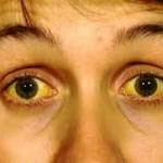 Желтый цвет кожи у взрослого человека. Причины, болезни, как избавиться