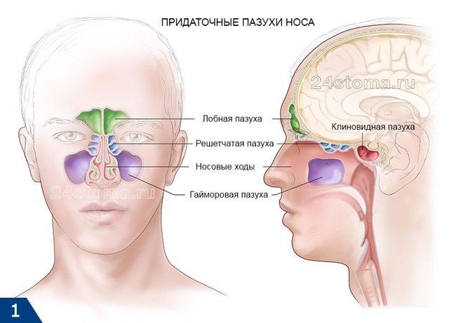Этмоидит: что это такое, симптомы и лечение у взрослых, детей, хронический, острый, полипозный, катаральный, двусторонний. Как и чем лечить заболевание головного мозга в домашних условиях