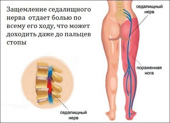 как болит мышца выше колена впереди этом что-то