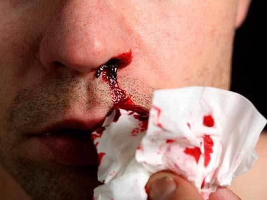 Кровь из носа. Причины у взрослого по утрам, при нормальном состоянии, часто или внезапно, что делать, лечение