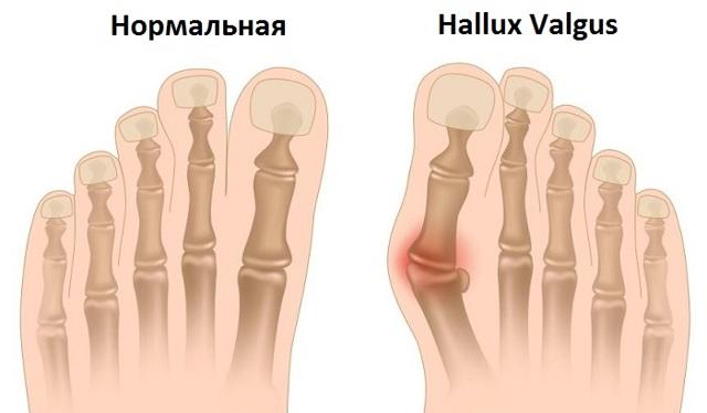 Кость на ноге возле большого пальца. Лечение в домашних условиях народными средствами, массаж, операция. Причины, к какому врачу обратиться