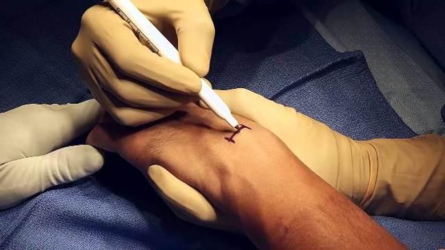 Шишка на запястье на руке сверху. Твердая гигрома под кожей с внешней, внутренней стороны. Лечение народными средствами, мази, удаление лазером, хирургическим путем