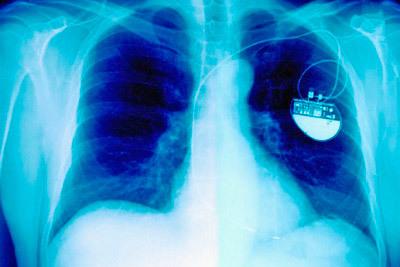 Сколько стоит операция по установке кардиостимулятора
