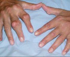 Мочевая кислота в крови норма у мужчин и женщин по возрасту, таблица, симптомы и лечение, если повышена, понижена, народными средствами, препаратами